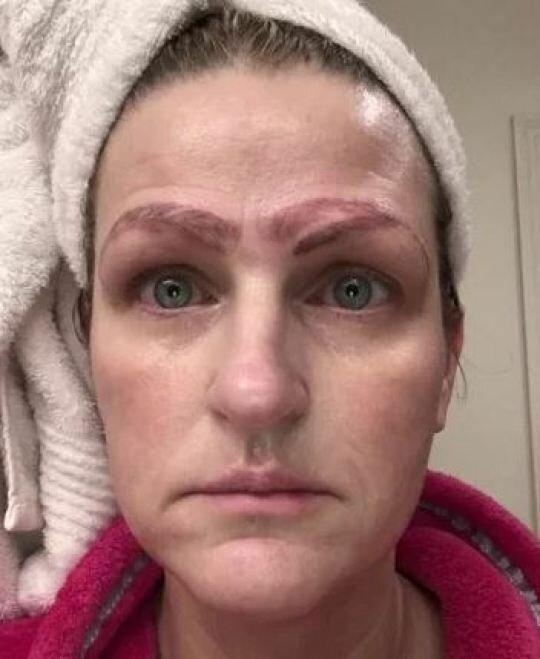 Косметическая клиника подарила клиентке вторые брови бесплатно аппаратный татуаж, косметология, красота это страшная сила, медицинская ошибка, микроблейдинг, не повезло, не смогла, некрасиво получилось