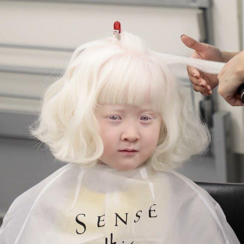 14. Очаровательная Белоснежка Витилиго, альбиносы, афроамериканцы, генетика, гетерохромия, красота, мутация