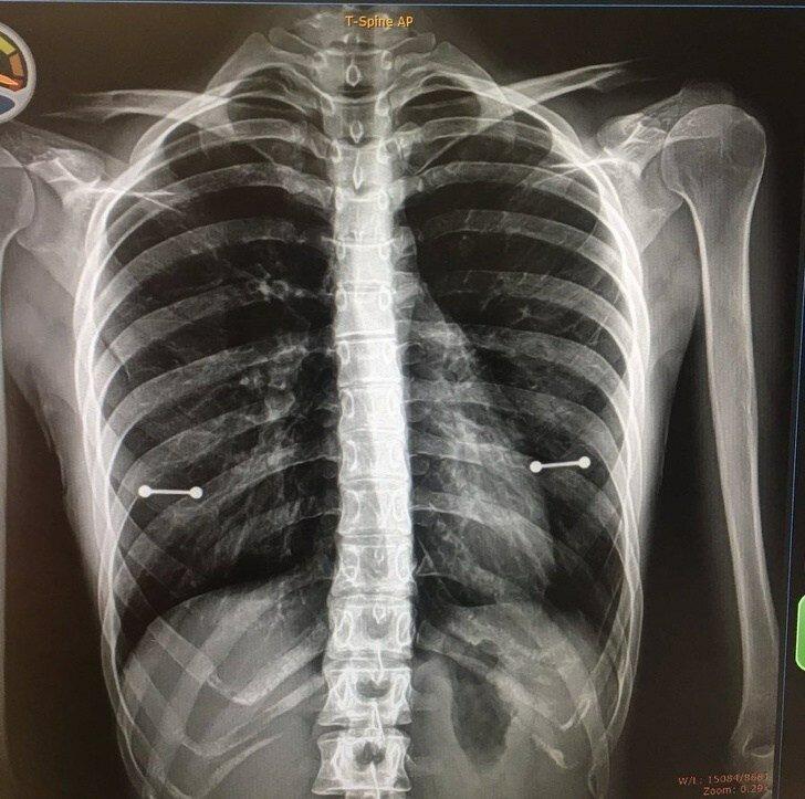 6. Тот случай, когда рентген выдал маме, что у ребенка есть пирсинг в некоторых очень интересных местах авария, неудача, падение, праздники, провал, худший день