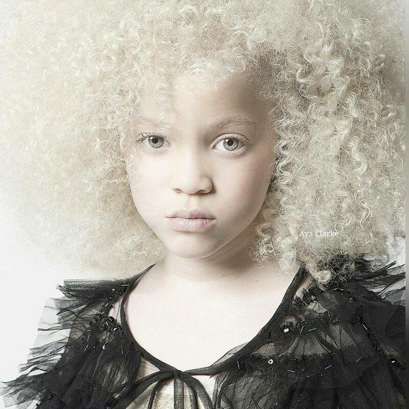 17. Афроамериканка-альбинос Витилиго, альбиносы, афроамериканцы, генетика, гетерохромия, красота, мутация