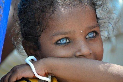 19. Девочка с красивыми глазами Витилиго, альбиносы, афроамериканцы, генетика, гетерохромия, красота, мутация