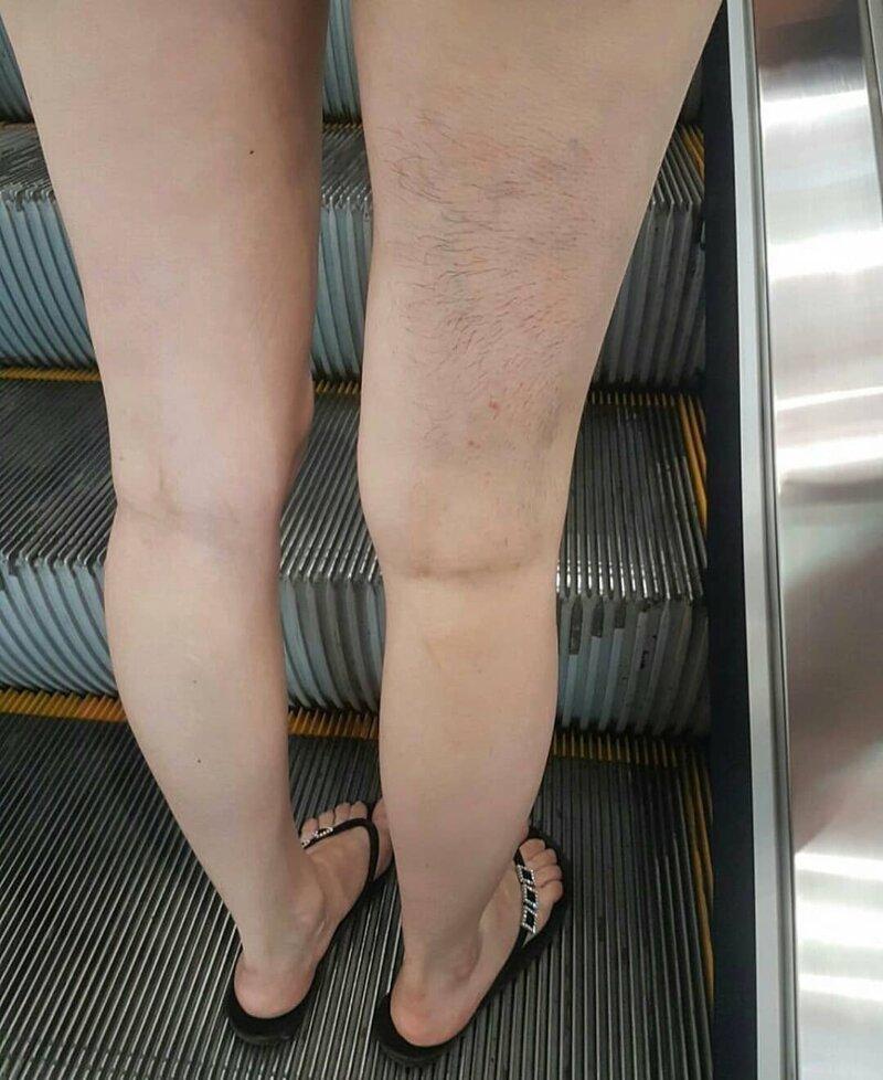 Какое лето - такие и ноги