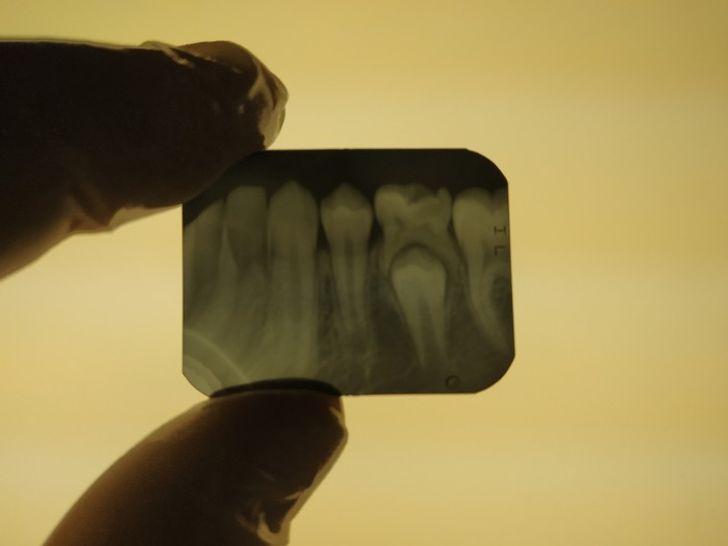 Удивительные открытия, которые дарят обычные рентгеновские снимки человека и других вещей